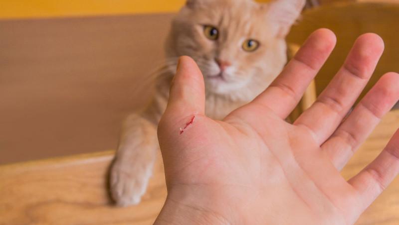 how do you get cat scratch fever